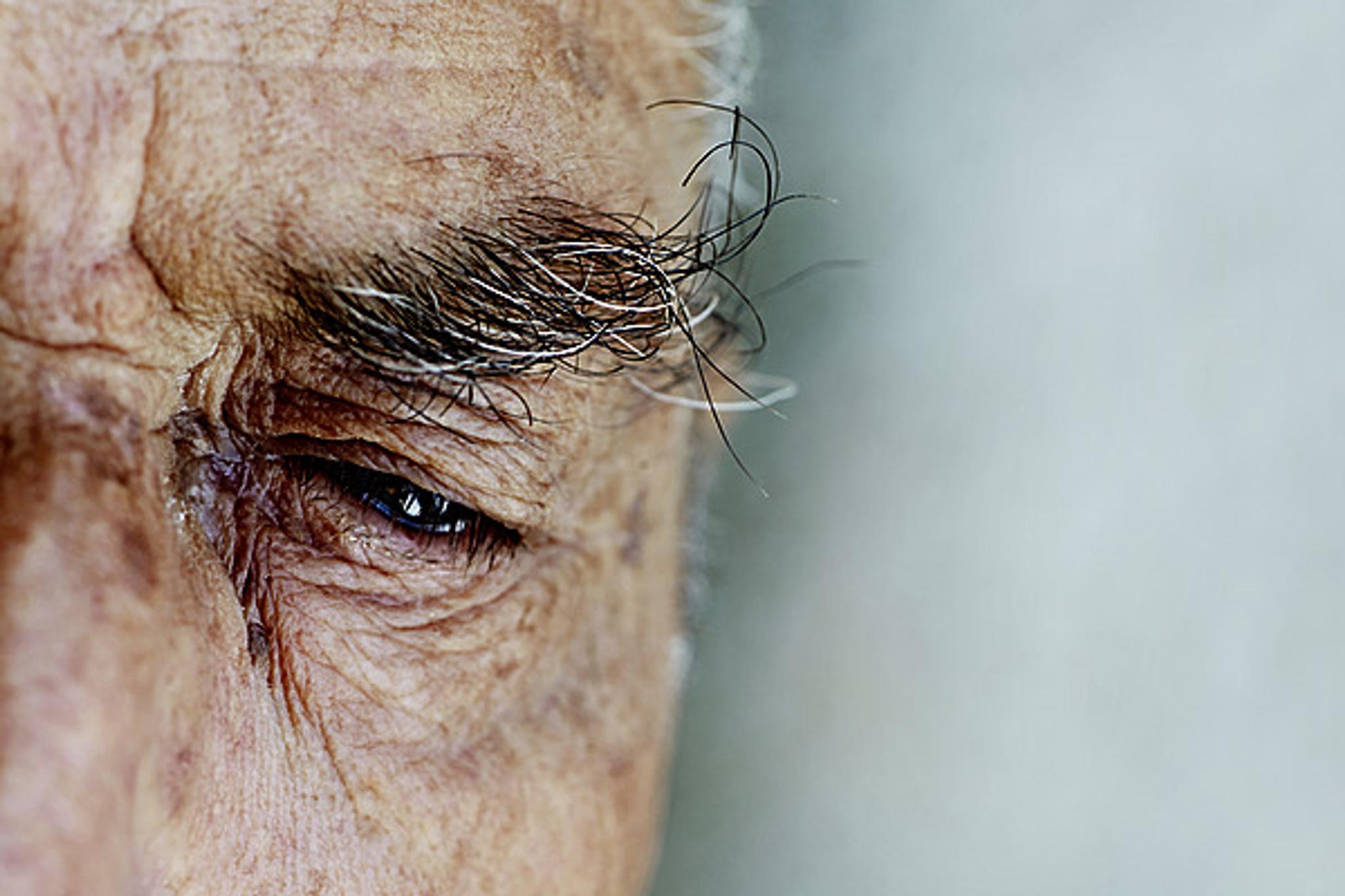 Vetistävät Silmät